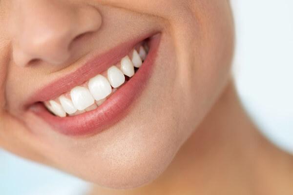 zdravý úsmev