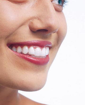 rovné zuby
